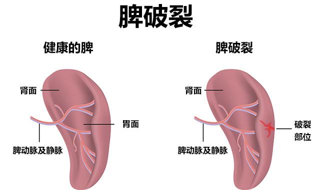 脾脏组织结构图