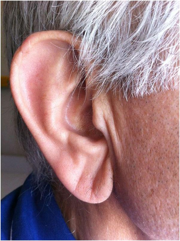 (Frank征) 2012年,由美国希德斯-西奈医学中心完成,并发表在《美国心脏病医学杂志》上的研究发现,耳垂出现对角线折痕极有可能提示冠心病。 另一项于2006年发表在《美国法医学和病理学》上的报告指出,耳垂褶痕对40岁以下人群冠心病预测的准确性高达80%。 这一关联于1973年首次被研究者Sanders T.
